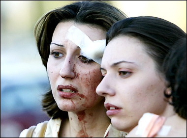 Iran Coming War with America Iraqi Women Injured in Suicide Bombing
